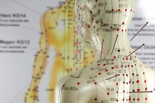 acupuncture general
