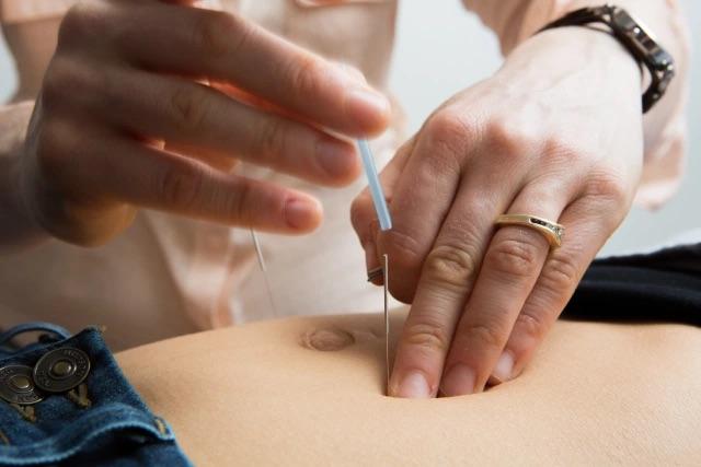abdominal acupuncture_2